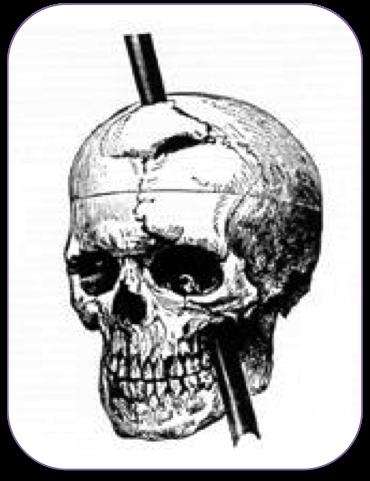 WillpowerSkull